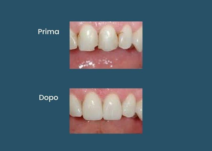 odontoiatria-conservativa