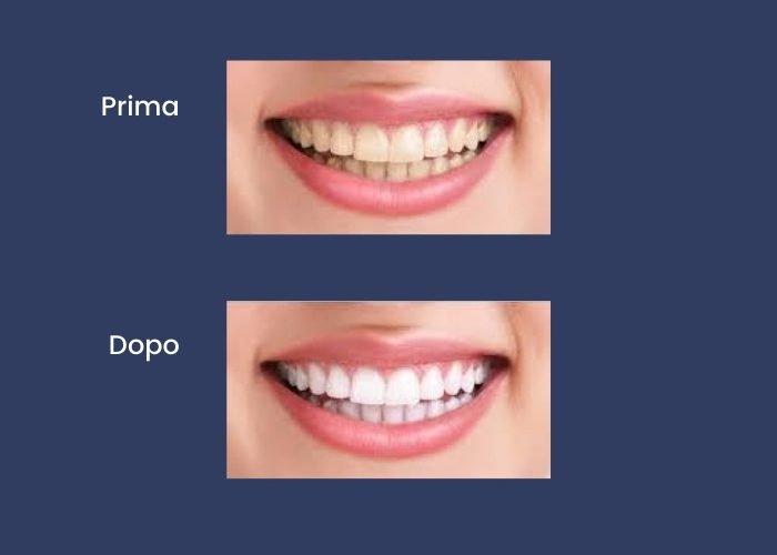 igene-e-sbiancamento-dentale